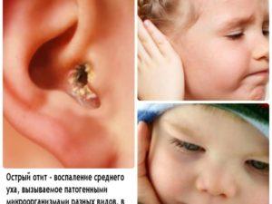 Отит у ребенка: признаки, правильное лечение и возможные осложнения осложнения