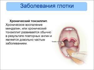 Заболевания глотки и гортани: как различить и чем лечить