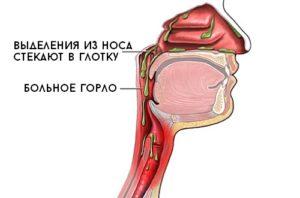 Слизь из носа стекает в горло постназальный синдром: причины и лечение