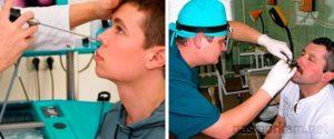 Прокалывание носа при гайморите: показания, противопоказания и возможные осложнения