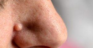 Нарост на носу у человека: виды и способы лечения