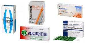 Антибиотики при рините для детей и взрослых