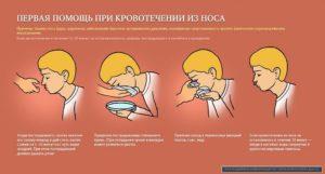 Полезные советы: что нужно делать при носовом кровотечении
