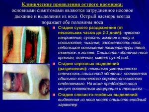 Список заболеваний слизистой носа и методы их лечения