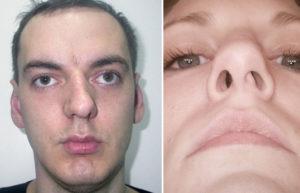Последствия кривой перегородки носа и способы лечения патологии