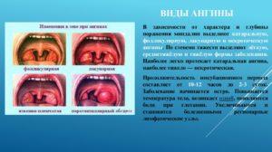 Что делать при первых признаках ангины: описание и лечение заболевания