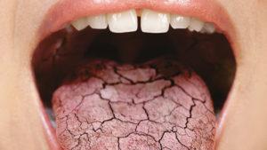 Сильно сохнет во рту ночью? Ксеростомия: причины и лечение