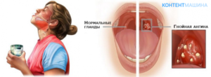 Как и чем лечить гнойный тонзиллит у взрослых?