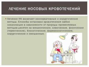 Частое кровотечение из носа: причины, медикаментозное и хирургическое лечение