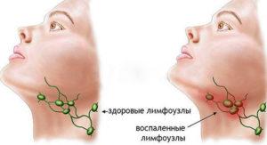 Воспаленные лимфоузлы под челюстью: эффективное лечение