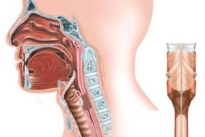 Воспаление носоглотки: признаки, лечение и профилактика заболевания