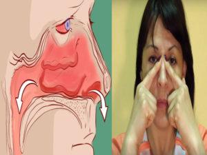 Плохо дышит нос, насморка нет: причины и особенности устранения патологии