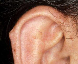 О чем свидетельствует шишка на ушной раковине?