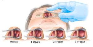 Полипы в носу: причины появления, стадии и лечение