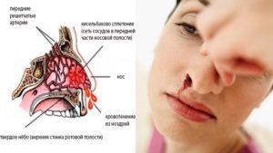 Сухая слизистая носа: причины и лечение