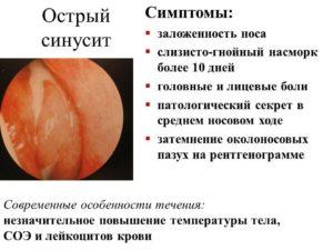 Острые и хронические синуситы: симптоматика и возможные осложнения
