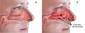 Особенности развития ринита и как быстро вылечить слизистую носа