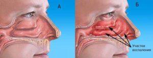 Болит носовая перегородка: причины и способы лечения заболеваний носа