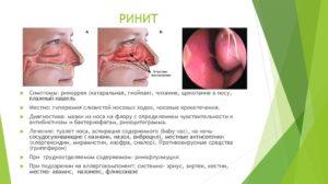 Лечение отека слизистой носа у грудничков, взрослых и при беременности