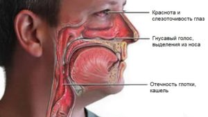 Воспаление носоглотки как и чем лечить?