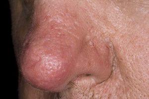 Покраснел нос и болит? Ищем причину