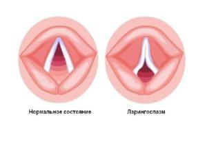 Спазмы в горле и удушье причины возникновения и диагностика паталогии