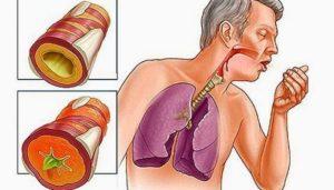 Что такое хронический бронхит, чем он опасен и как его лечить?