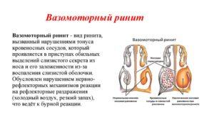 Чем лечить вазомоторный ринит физиотерапия, народное и медикаментозное лечение