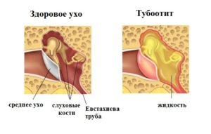 Острый тубоотит признаки и лечение недуга