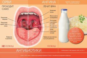 Бывает ли кашель при ангине и как его лечить?