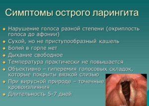 Основные симптомы и причины ларингита у взрослых