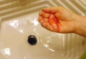 Чем опасна мокрота с кровью без кашля?