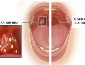 Особенности лечения болезней горла чем лечить в домашних условиях