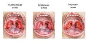 Сколько держится температура при ангине у детей, как и чем ее сбить?