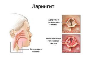 Хронический ларингит: симптомы и лечение, причины болезни