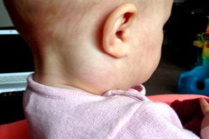 Что делать, если у ребенка увеличены подчелюстные лимфоузлы?