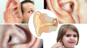 Как лечить ухо если продуло особенности и методы лечения