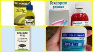 Полоскание при боли в горле лучшие препараты, рецепты и правила