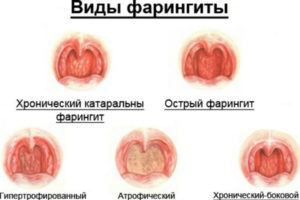 Чем лечить фарингит у взрослых: медикаментозное лечение и народные средства