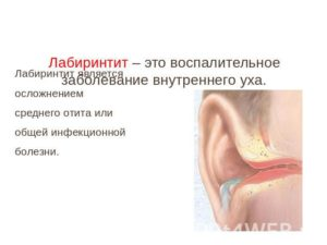 Лабиринтит воспаление внутреннего уха: признаки и способы лечения