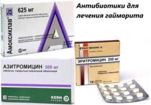 Каким антибиотиком лечить гайморит: виды антибиотиков для детей и взрослых