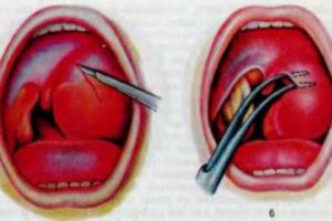 Как лечить гнойники в горле: лекарства, рецепты, операция