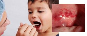 Герпес в горле: основные симптомы вирусной инфекции