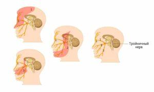 Тройничный лицевой нерв: симптомы, причины воспаления и лечение народными средствами
