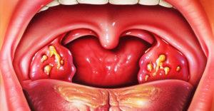Что делать, если в горле появился гнойничок?