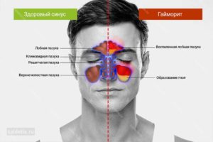 Воспаление гайморовых пазух: основные симптомы гайморита