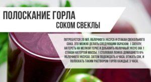 Как лечить горло народными средствами лучшие рецепты и методы