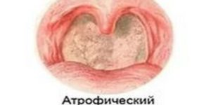 Субатрофический фарингит: методика лечения недуга