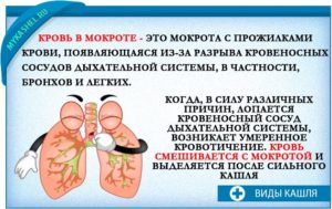 Кровь в мокроте по утрам? Причины и методы лечения