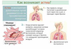 О чем говорит сильный кашель без температуры у взрослого и как его лечить?
